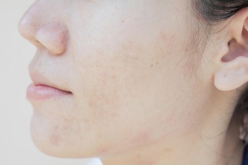 Tratamento a Laser para Melasma
