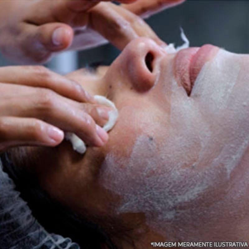 Limpeza Profunda de Pele com Muito Acne