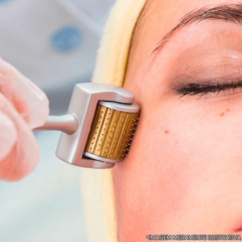 Microagulhamento Face Arco-íris - Microagulhamento Flacidez
