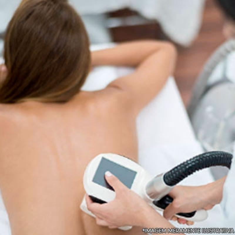 Onde Encontro Tratamento para Gordura Localizada Estética Caputera - Tratamento Gordura Localizada Braços