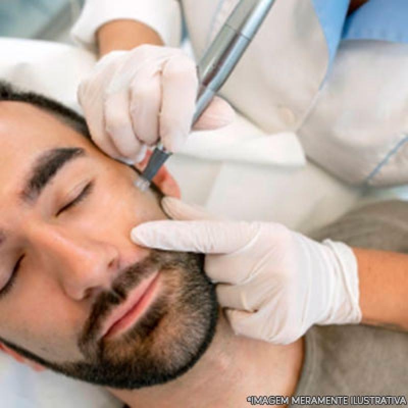 Onde Fazer Microagulhamento Face Recanto dos Victor - Microagulhamento Fácial