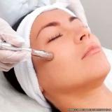 agendamento de limpeza de pele profunda com extração de cravos preço Granja Carolina