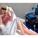 clínica para depilação a laser axila Parque Alexandre