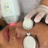 clínica para depilação a laser no rosto Parque Santa Rita de Cassia
