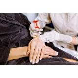 clínica para tratamento para rejuvenescimento das mãos Jardim Petrópolis