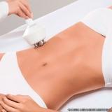 criofrequência abdominal