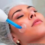marcar limpeza profunda de pele com muito acne Parque Rincão