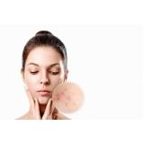 onde faz tratamento para acne e manchas Jardim Belizario