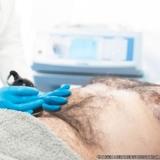 onde tem tratamento para gordura localizada em homens Recanto dos Victor