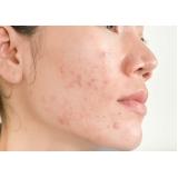 tratamento cicatriz acne Nakamura Park