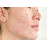 tratamento de acne Alphaville