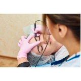 tratamento para marcas de acne