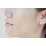 tratamento de melasma no rosto