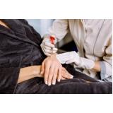 tratamento para rejuvenescimento das mãos Jardim Elias