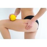 Tratamento Carboxiterapia para Gordura Localizada
