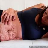 tratamento flacidez barriga