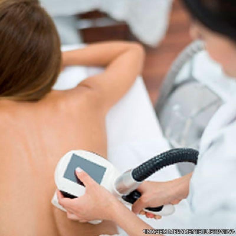 Tratamento Gordura Localizada Costas Terras de São Felipe - Tratamento para Gordura Localizada em Homens