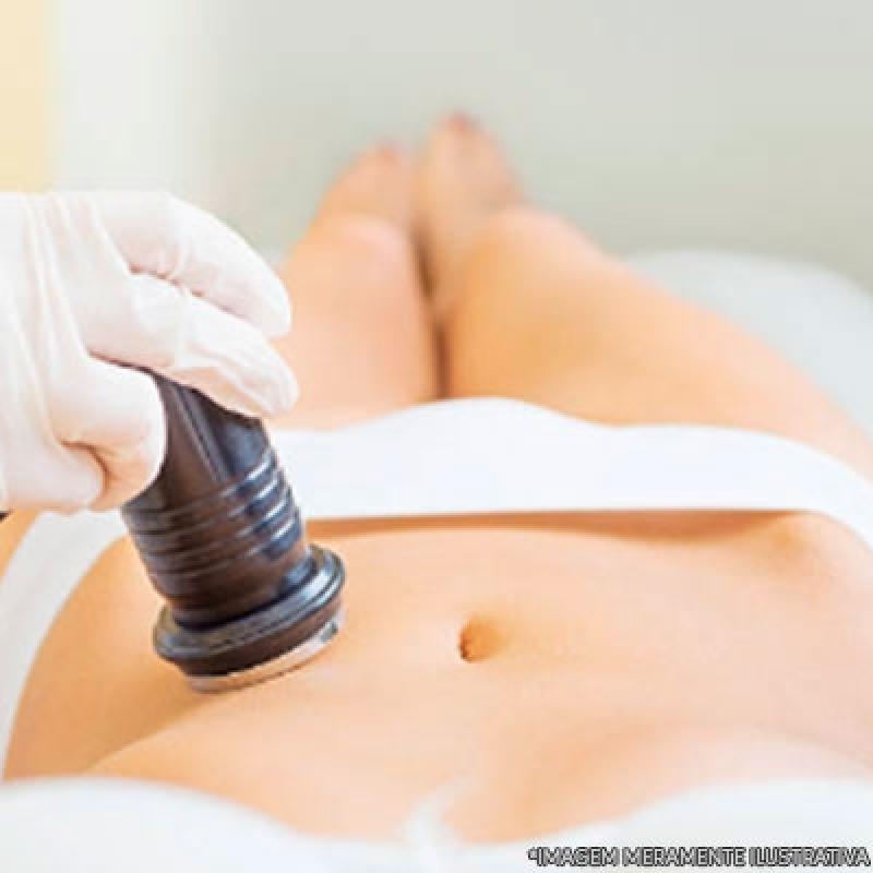 Tratamento para Gordura Localizada Barriga Santana - Tratamento Gordura Localizada Barriga